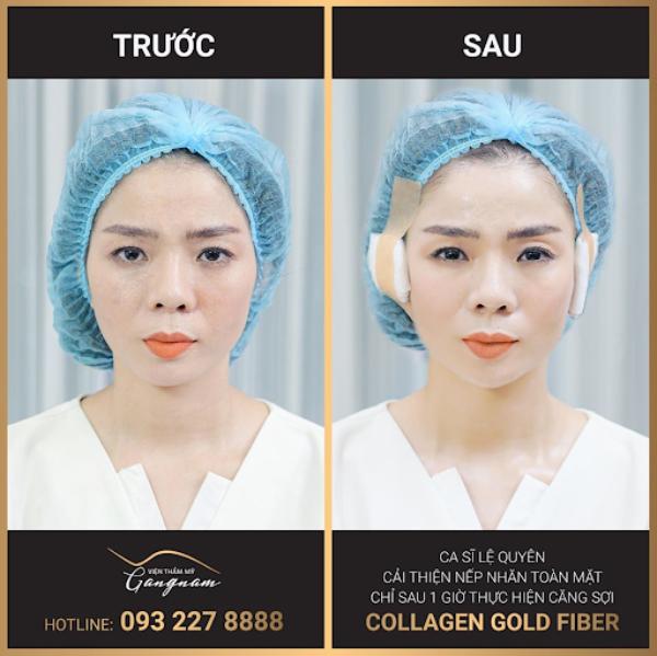 Ca sĩ Lệ Quyên sở hữu làn da mịn màng, căng bóng sau liệu trình Collagen Gold Fiber tại Mega Gangnam