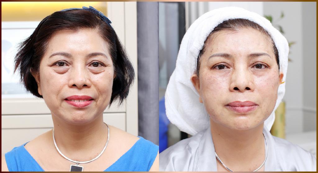 Hiệu quả căng chỉ cải thiện nếp nhăn vùng mắt và trẻ hóa toàn mặt