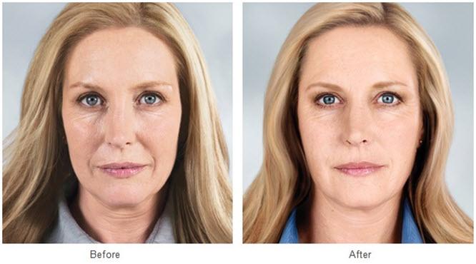 Hiệu quả cải thiện nếp nhăn trên da của căng chỉ vàng 24k