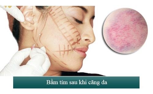 Căng chỉ vàng 24k có thể gây tình trạng sưng bầm tại vị trí căng da