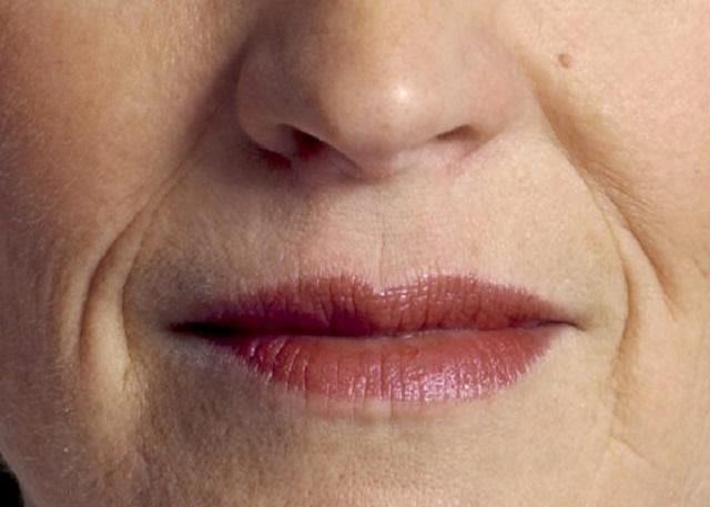 Rãnh mũi má thấy rõ hơn khi làn da lão hoá (Hình minh họa)