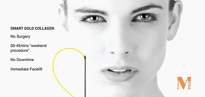 Chỉ lai vàng - collagen ra đời khắc phục nhược điểm của các sợi chỉ đơn thông thường