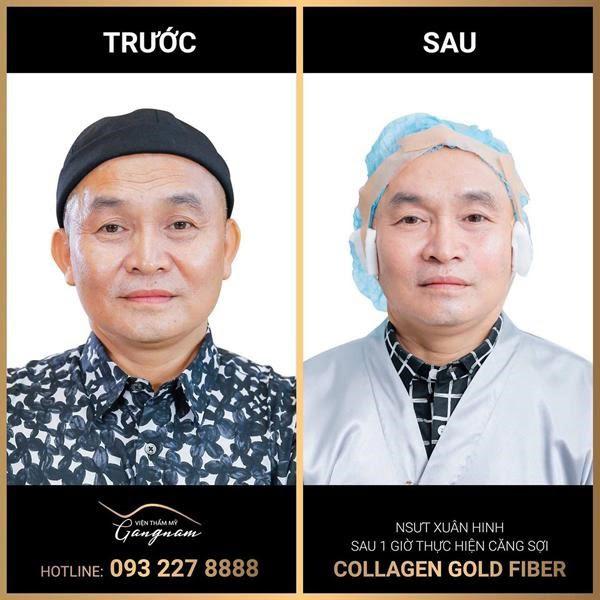 Kết quả sau khi thực hiện căng chỉ lai collagen - vàng của NSƯT Xuân Hinh