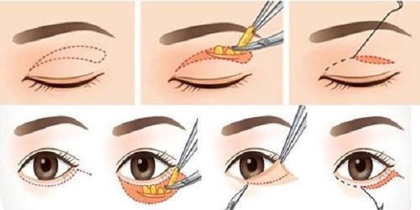 Phẫu thuật mắt 1 mí có nguy hiểm không?