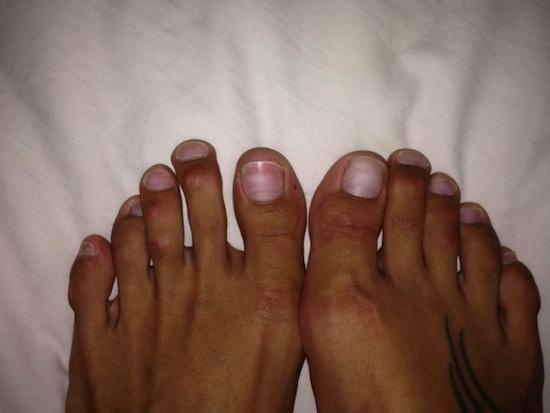 Paulina có ngón chân thứ 2 và thứ 3 dài hơn ngón cái