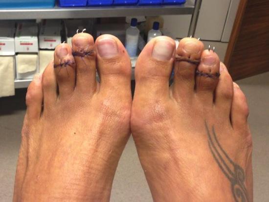 Ngón chân thứ 2 và thứ 3 của cô được phẫu thuật cắt ngắn