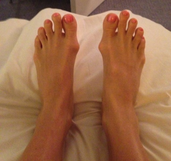 Phần xương nhô ra khiến Sonja mất tự tin mỗi lần đi giày hở ngón