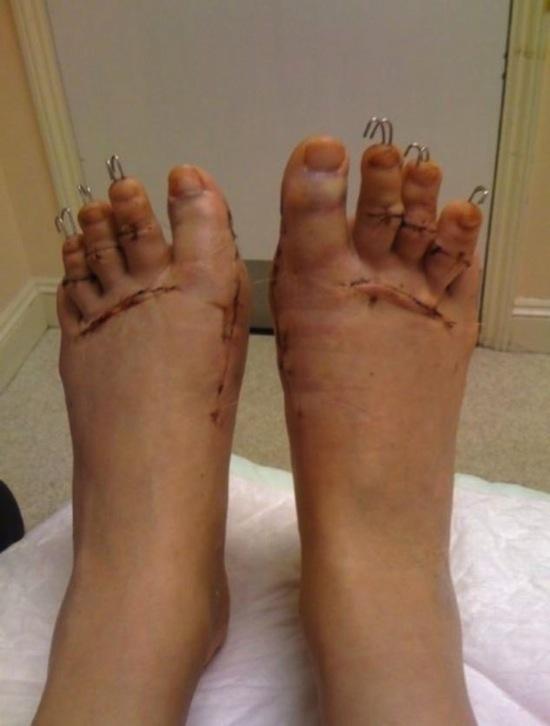 Dù sau 1 năm phẫu thuật, chân Danielle vẫn cứng đờ, mắt cá chân và đầu gối rất đau.