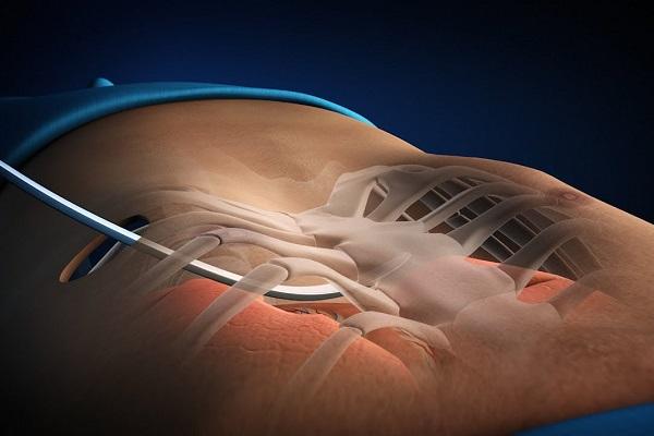 Phẫu thuật thẩm mỹ rút xương sườn