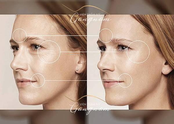 nguyên nhân và cách phòng ngừa lão hóa da bạn nên biết