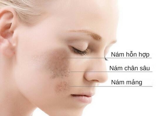 Thẩm mỹ trị nám da mặt bằng Laser có hiệu quả không?